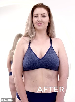 Before and after: Michelle Zamora, 31, was given a mommy makeover on Netflix